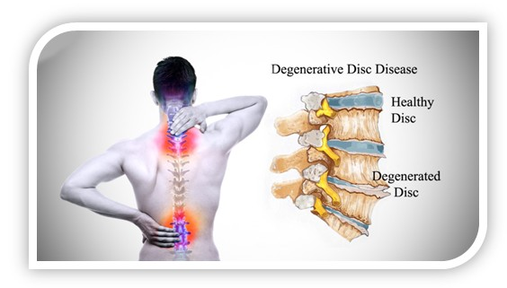 Degenerative spinal disease
