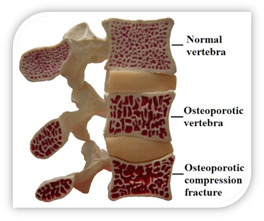 Osteoporosis of the vertebrae