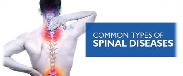 The most common diseases of the spine